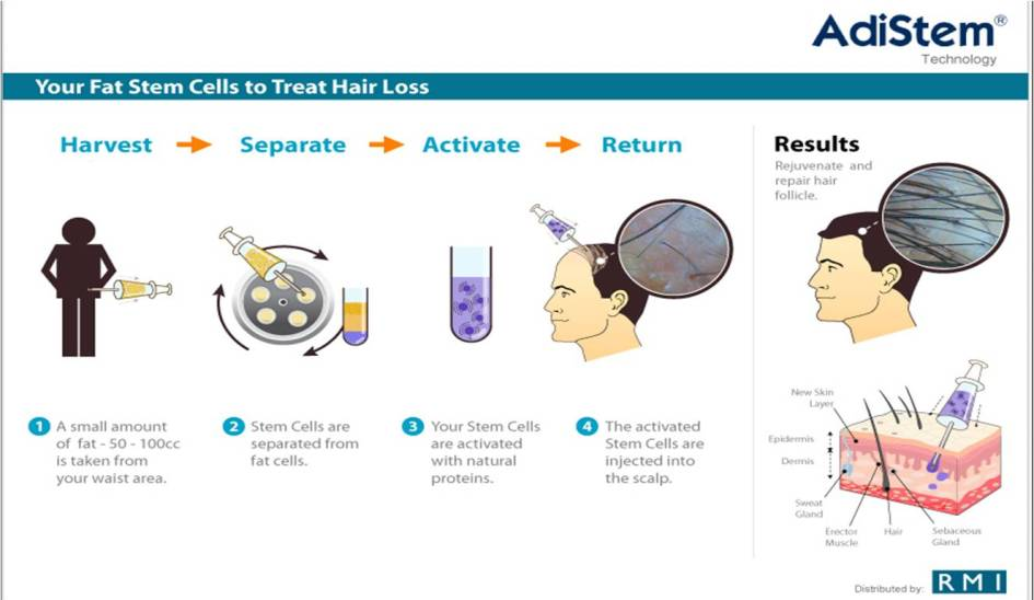 10 Promising Treatment Which Could Prevent Hair Loss Within