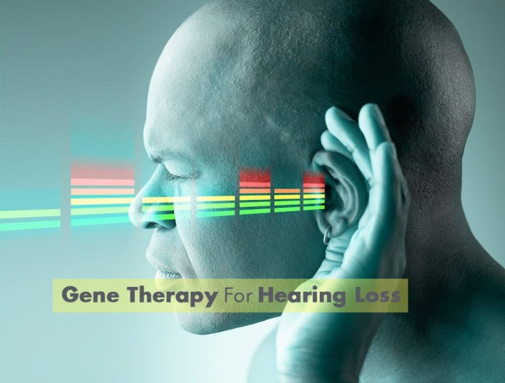 Gene Therapy For Hearing Loss