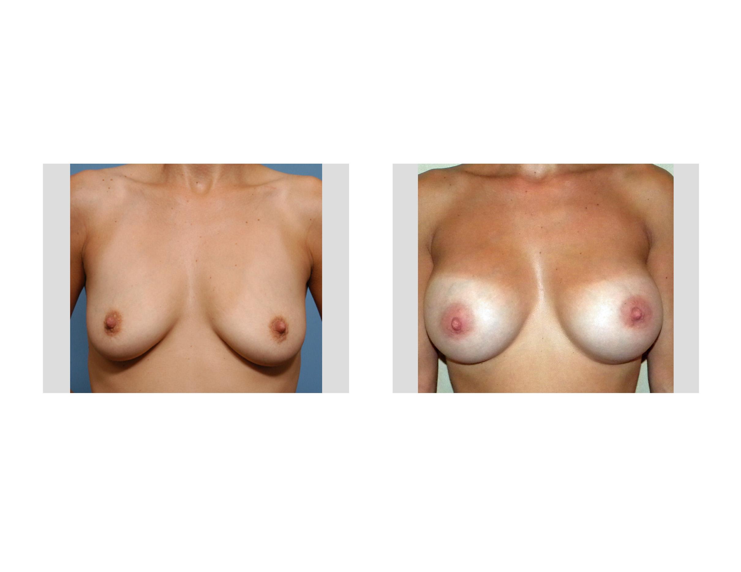 nipple enlargement tumblr