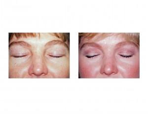 Upper Blepharoplasty and Eyelid Scars - Explore Plastic ...