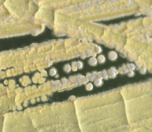 Streptomyces griseus, a Streptomycin producing bacterium.