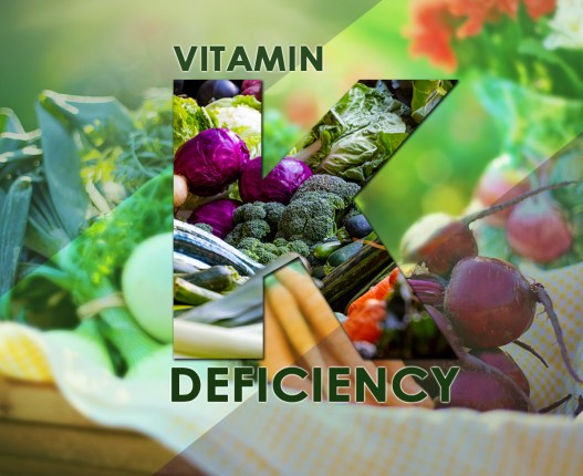 The Vitamin K Deficiency
