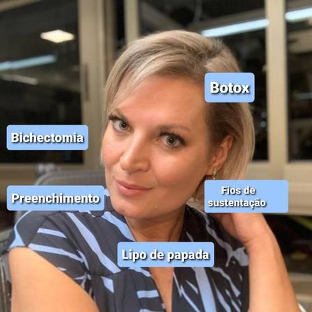 Joice Hasselmann: procedimentos no rosto