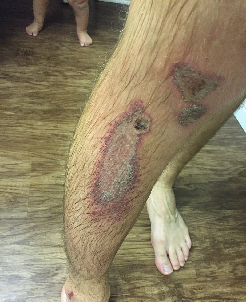 Running injury from a recent slam while trail running