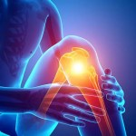 Glucosamine Supplements – How to Choose the Best One for You