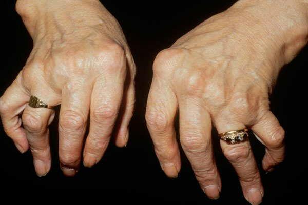 bone-cancer-causes-symptoms-risk-factors-treatment-methods-21273512350.jpg
