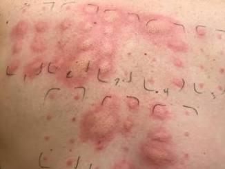 alerji testi nedir ve neden yapılır