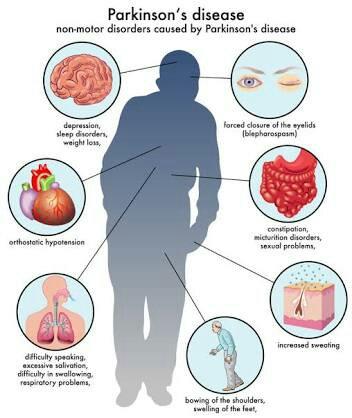 Parkinson Hastalığı Neden Olur
