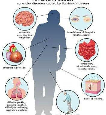 Parkinson hastalığı nedir ve neden olur