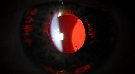 Lenz lens3-672