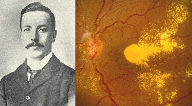 Eponyms in Ophthalmology