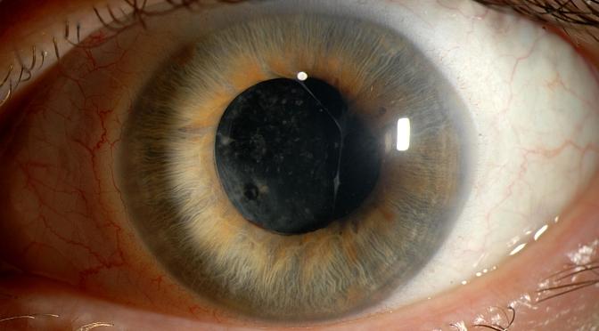 The Eye is Like a Camera