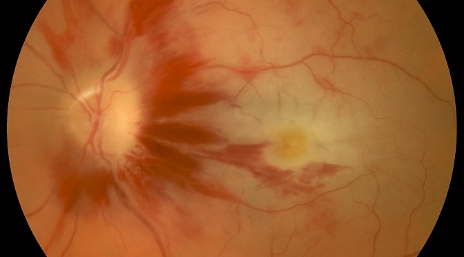 Ophthalmic Photography: Where Science Meets Art