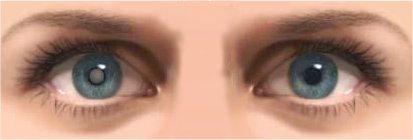 Gedramatiseerde tekening met staar in het (voor de patiënt) rechter oog.