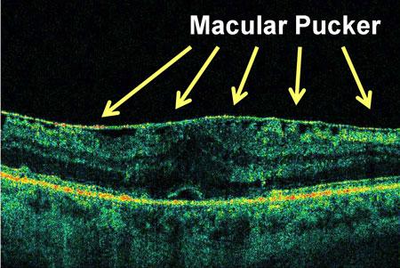 Afbeelding 2: de macula pucker ligt als een extra laagje bovenop het netvlies.