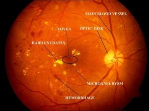 Diabetische retinopathie in een rechter oog. Klik voor een vergroting.