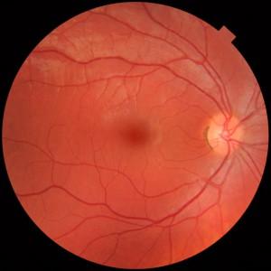 Fundusfoto van een gezond rechter oog.