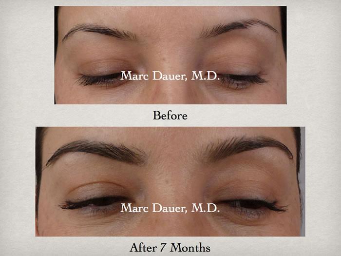 Eyebrow Transplant Photos Gallelry | Marc Dauer MD