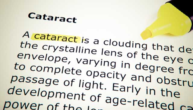 Risk Factors of Developing Cataract