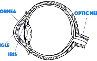 narrow angle glaucoma
