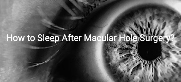 How to Sleep After Macular Hole Surgery