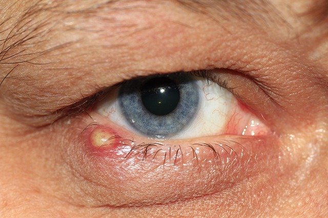 postponing cataract surgery due to eye infection