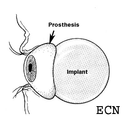 diagram of artificial eye bmw wiring diagrams e90 faq new york cancer center ocular prosthesis