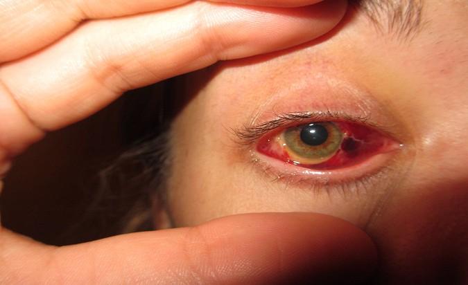 هل الانفصال الشبكى يسبب العمى مركز عيون مصر
