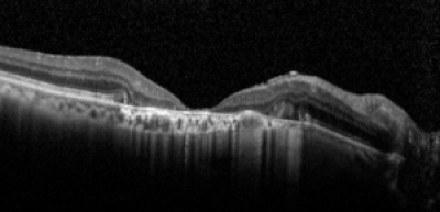 Atrophy of the outer retinal and RPE with stronger transillumination through the choroid