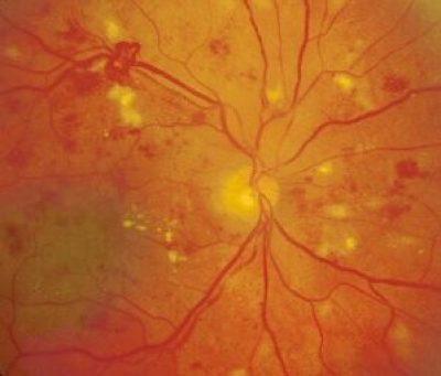 High-risk proliferative diabetic retinopathy