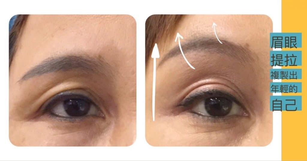 【眼皮鬆】鬆弛眼皮→復刻年輕大眼全紀錄(多圖) | 李瑞田院長 精工眼美學