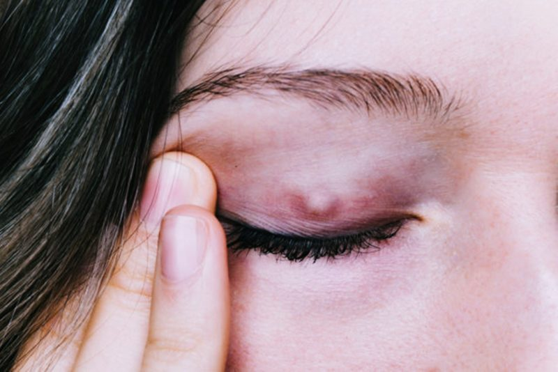 What Is A Chalazion Eye Love Cares