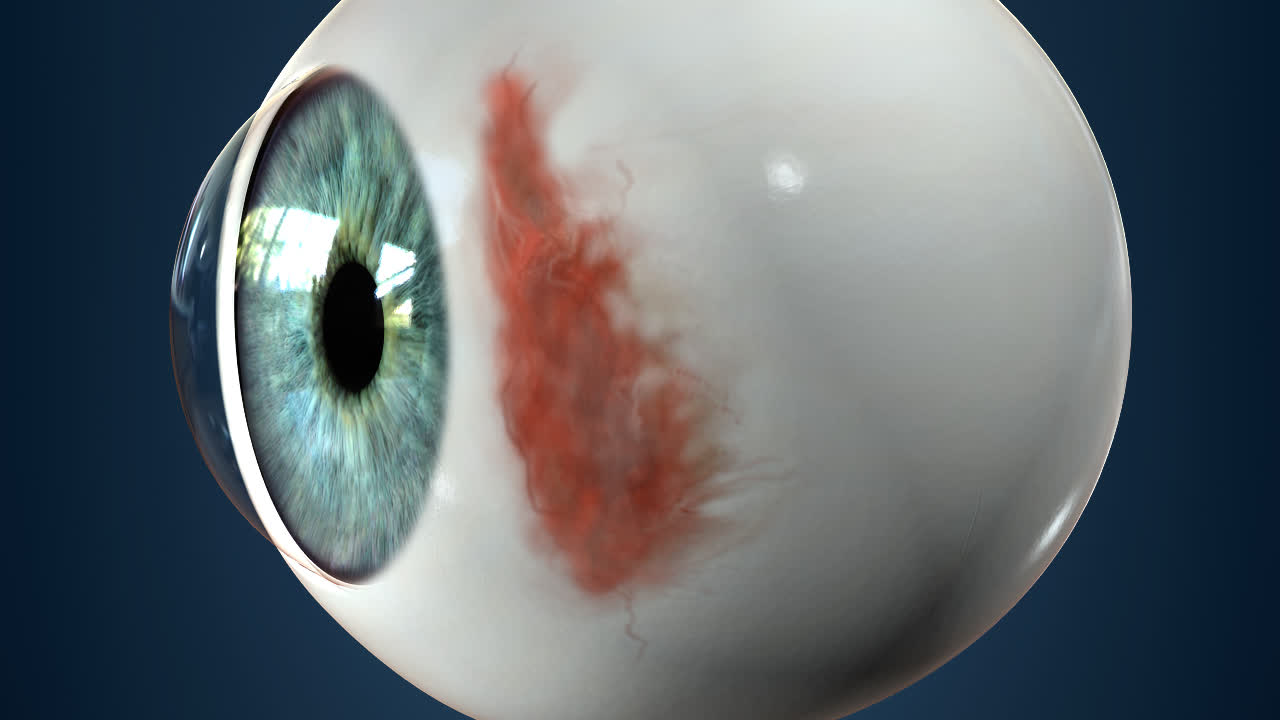 subconjunctival hemorrhage treatment overview