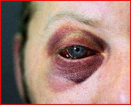 assaulted eye