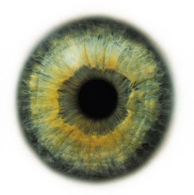 Rankin eye # 2