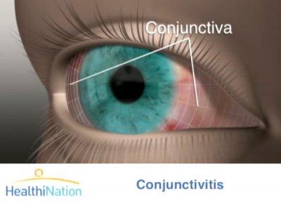 eye description