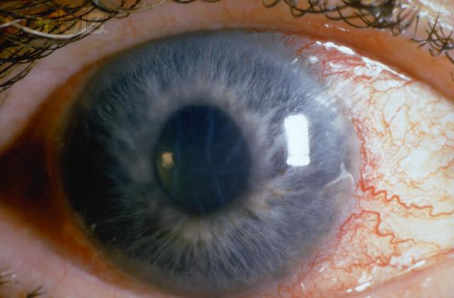 Glauchoma eye #2