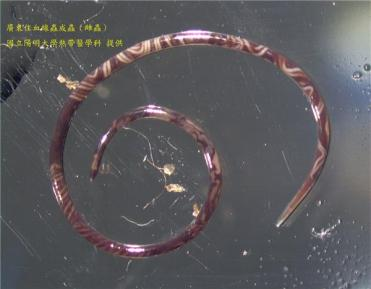 Photo courtesy of National Yang Ming University showing an adult female rat lungworm