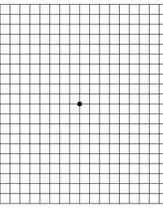 Amsler grid also visual field testing from one medical student to another rh eyerounds