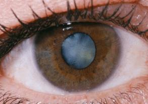 vl-cataract