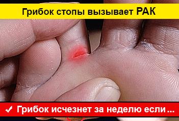 Лечение грибка стопы