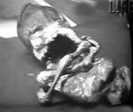 Кыштымский карлик инопланетянин или мутант. Обзор событий