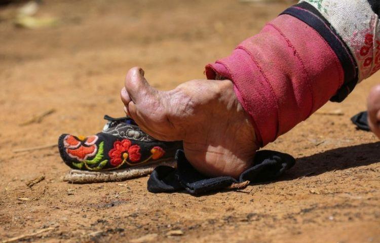 бинтование ног в Китае