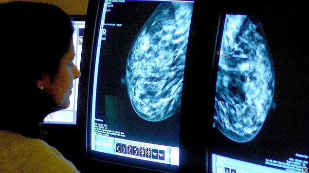 Médica analisa exame de imagem de seio, que pode detectar câncer; lei prevê começo de tratamento em até 60 dias