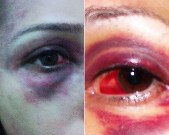 Aída Nunes mostra rosto com lesões; ela acusa o ex-namorado por ter cometido a agressão depois de uma festa