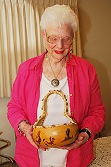 Virginia Bane sofre de Degeneração Macular Relacionada à Idade