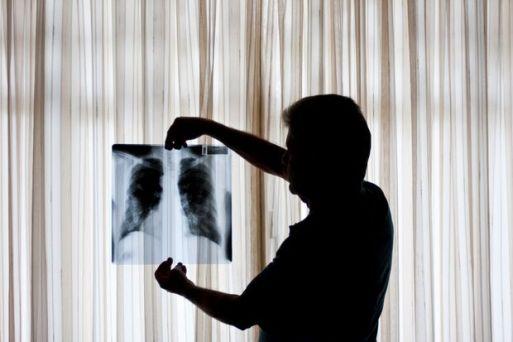 OSASCO, SP, BRASIL, 28-04-2010, 14h00: Ivo dos Santos trabalhou por 34 anos com exposicao direta ao amianto. Hoje ele tem asbestose, uma doenca que dificulta a respiracao e o impede de fazer exercicios. Na foto, ele segura o raio-x do seu pulmao. (Foto: Fred Chalub/Folha Imagem, SUPLEMENTOS/EMPREGOS) ***EXCLUSIVO FOLHA*** 3920