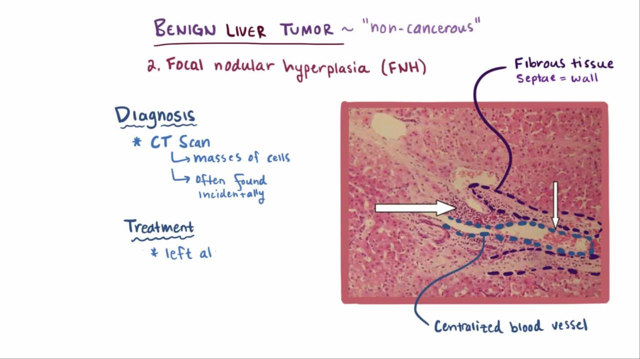 hight resolution of overview of benign liver tumors