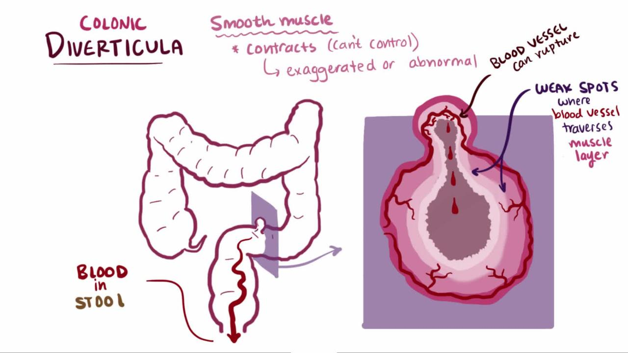 overview of diverticulosis and diverticulitis [ 1280 x 720 Pixel ]