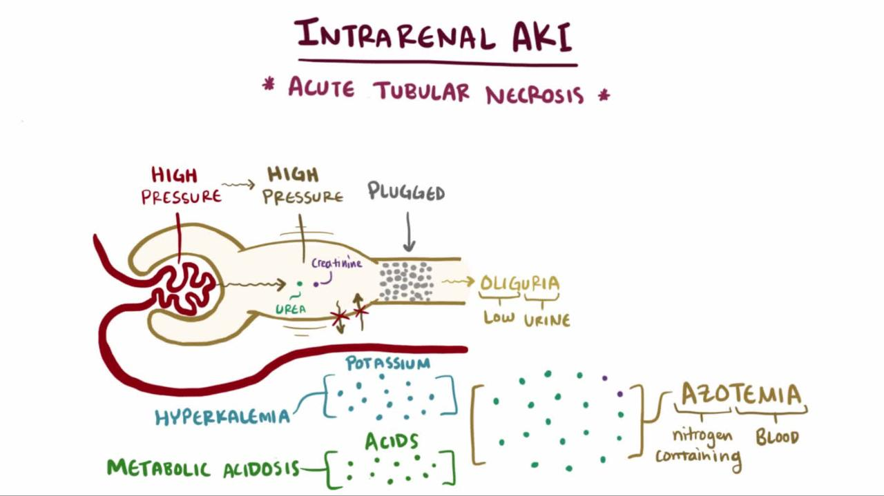 hight resolution of overview of intrarenal acute kidney injury